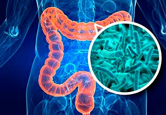 câncer intestinal