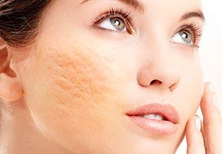 acne no rosto