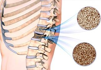 prevenção de osteoporose