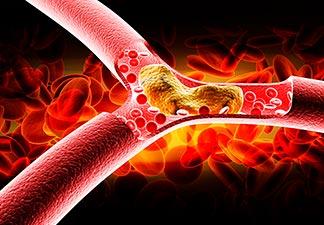 Triglicerídeo colesterol