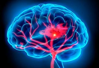 Causas da esclerose multipla