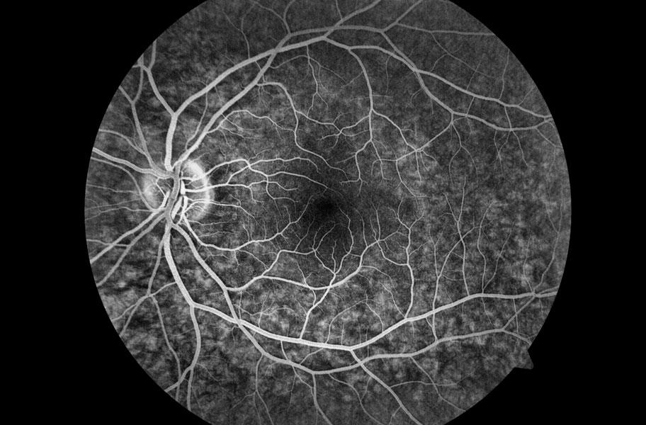 Angiografia de fluorescência