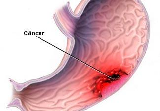 câncer de fígado secundário