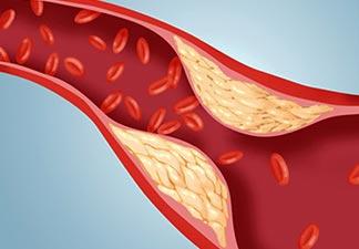 entupimento veias artérias