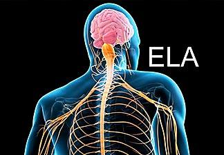 o que é ELA?