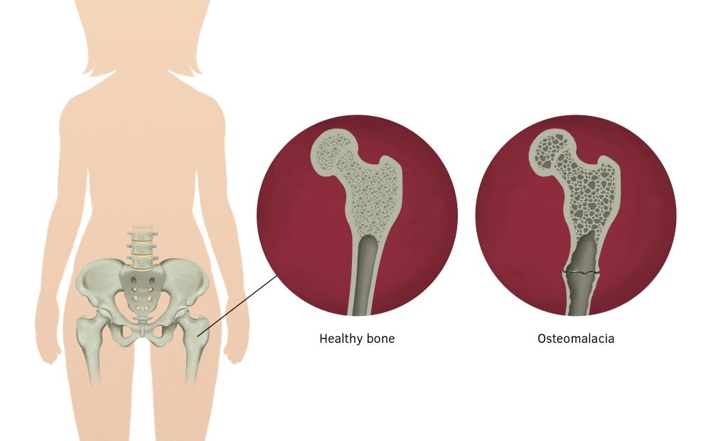 o que é osteomalacia