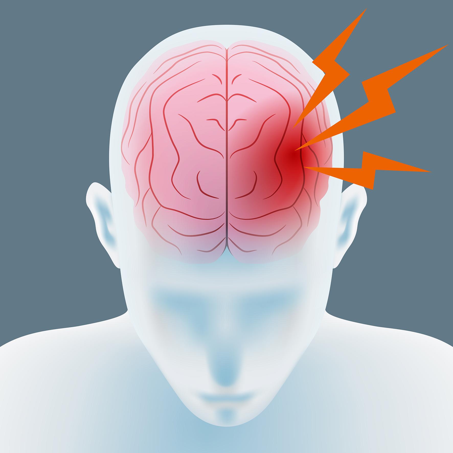 o que é paralesia cerebral