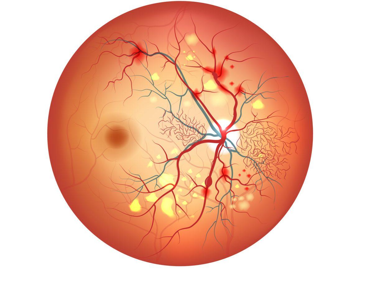 o que é retinopatia diabética?