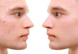 causas acne