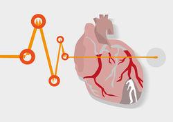 inflamação no coração