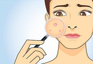o que é acne?