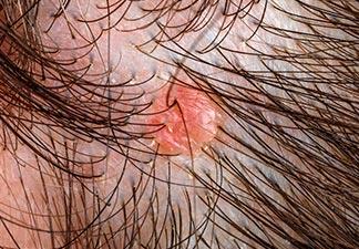inflamação no couro de cabeludo